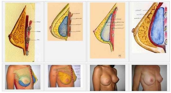 Technique augmentation mammaire en Tunisie
