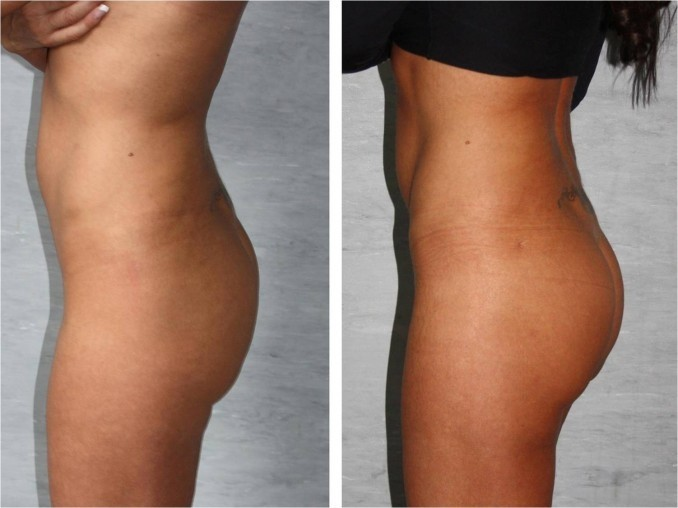 Augmentation fesses Tunisie : Prix pose implant fessiers