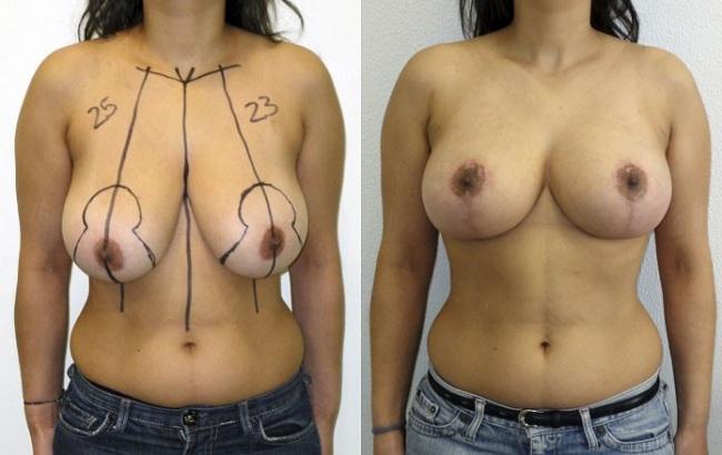 Reduction mammaire Tunisie : photo avant apres