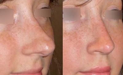 Rhinoplastie peau fine