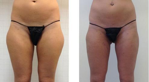 Resultat liposuccion Tunisie