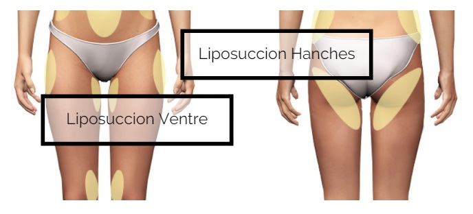 lipoaspiration hanches ventre