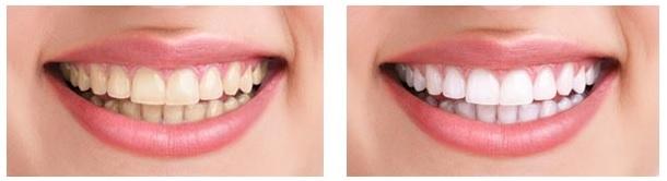 avant et après traitement
