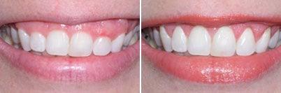 Résultat de la gingivectomie