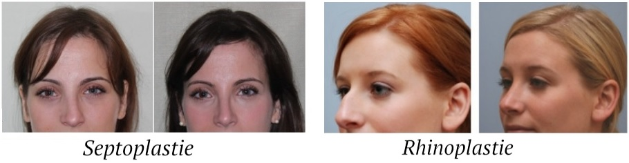 rhinoplastie-vs-septoplastie-tunisie