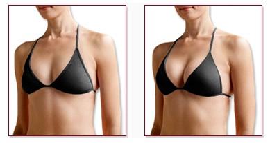 Augmentation mammaire avant et aprés