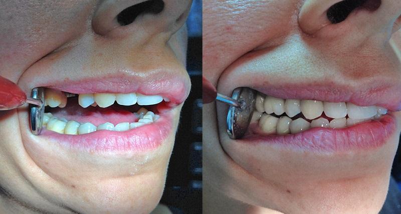 implant dentaitre avant et après