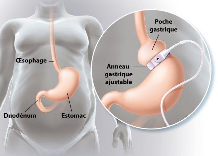 anneau-gastrique-laparoscopique-tunisie