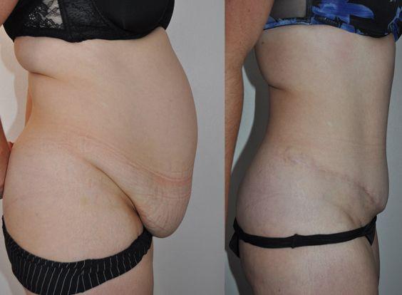 resultat-plastie-abdominale-turquie
