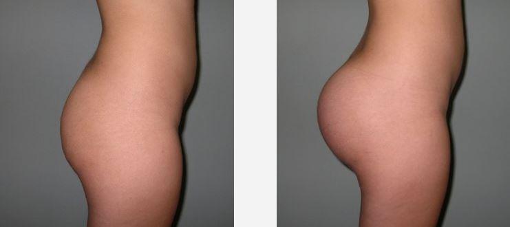 augmentation-fesses-implant